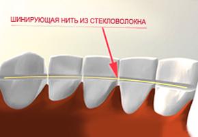 Стоматологическая поликлиника №28 - шинирование зубов